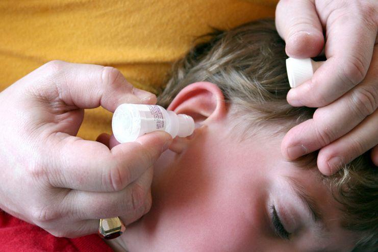 Hydrogen Peroxide to Clean earwax