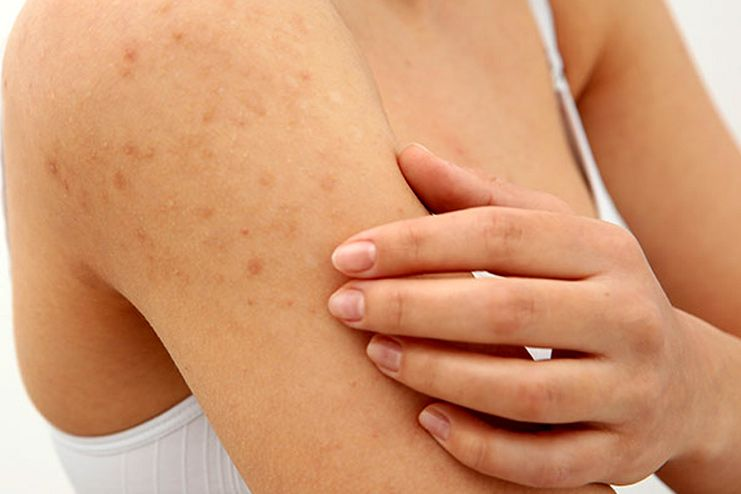 Symptoms of Keratosis Pilaris