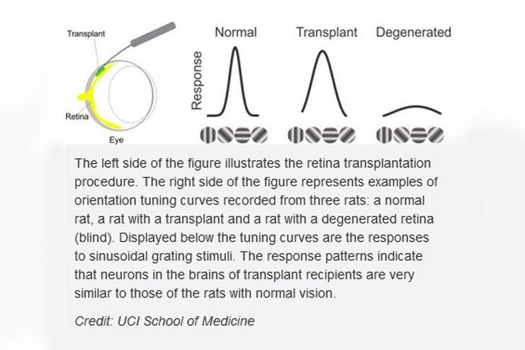 Cell-transplants