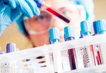 Liquid-Biopsy