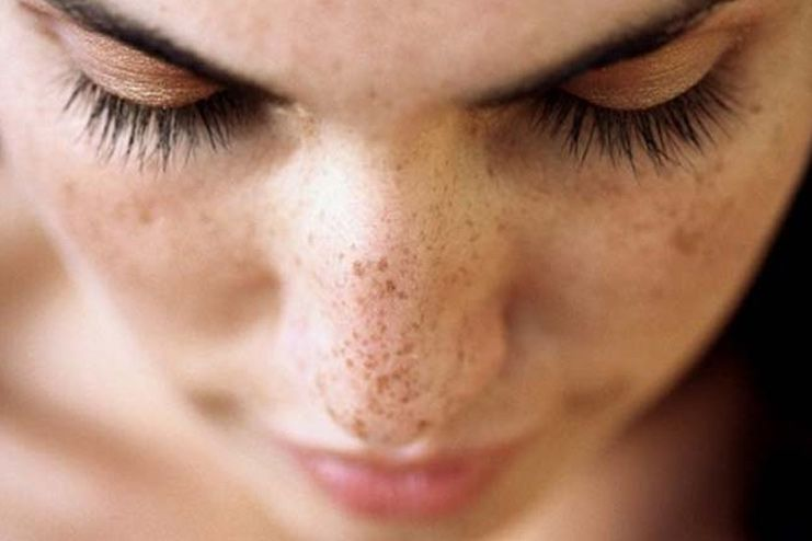 What causes Dark Spots