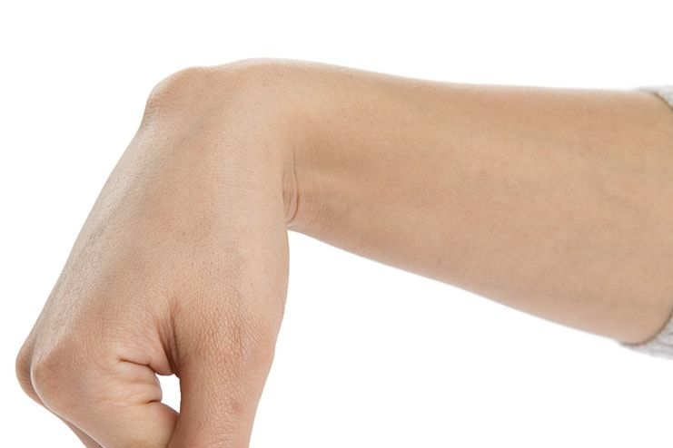 For ganglion cyst on wrist home remedies 19 Ways