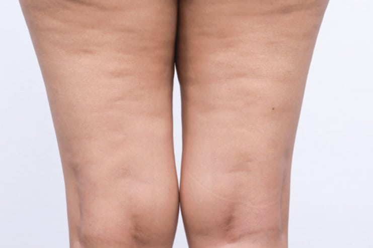 Get rid of the cellulite