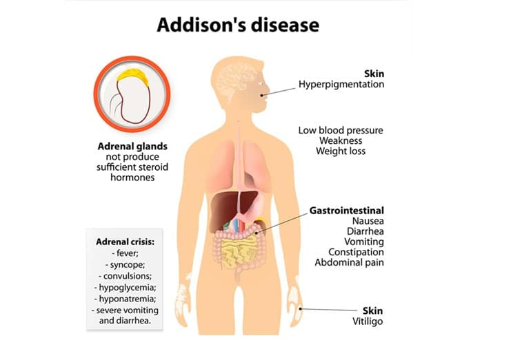 Addison-s Disease