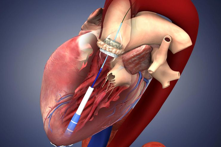 Catheter procedures