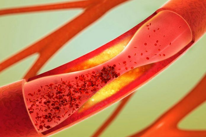 Effects of high cholesterol
