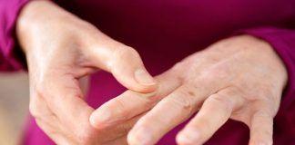 Hand exercises for arthritis