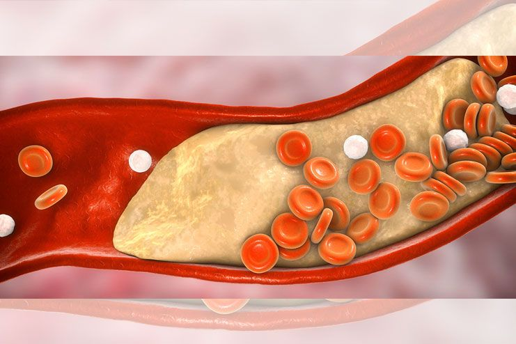 Types of Coronary Artery Disease