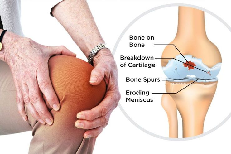 What causes Osteoarthritis