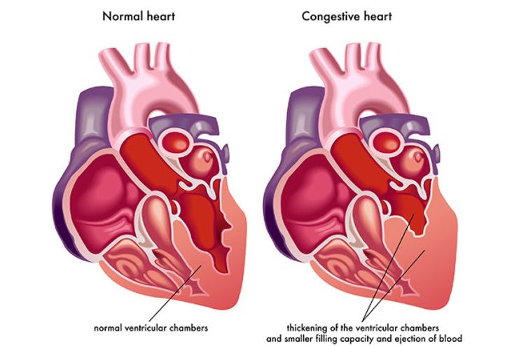 What-is-Congestive-Heart-Failure