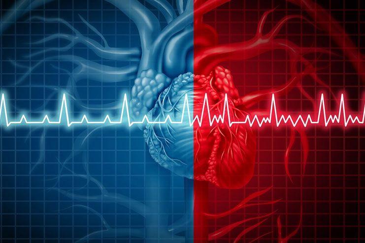What is Heart Arrhythmia