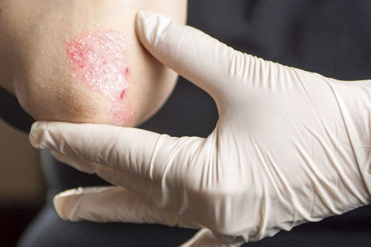 How To Reduce Stress For Psoriasis