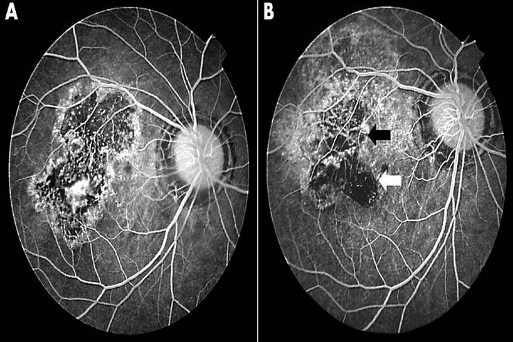 Retinal-Translocation