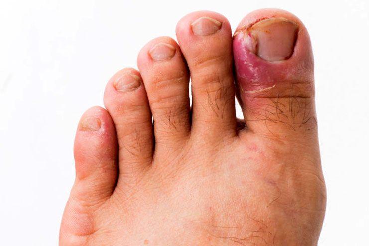 Risks of ingrown nails