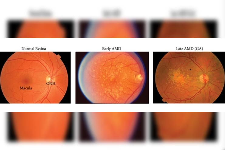 Stages-of-Macular