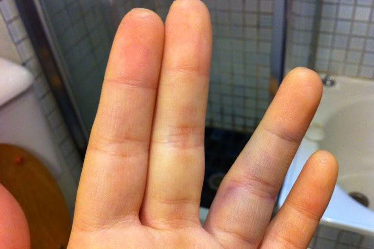 Symptoms of a Jammed Finger