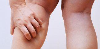 get rid of leg cramps