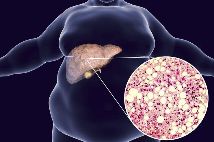 Risks of fatty liver