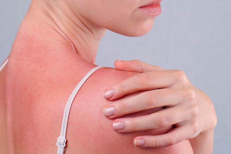 What Are The Signs And Symptoms Of Sun Poisoning