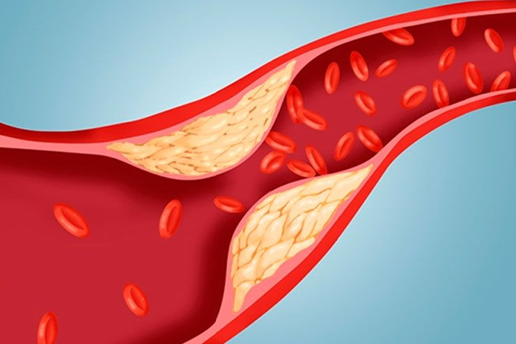Reduce Blood Triglycerides and Cholesterol levels