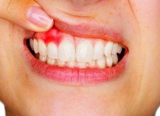 Home remedies for periodontitis