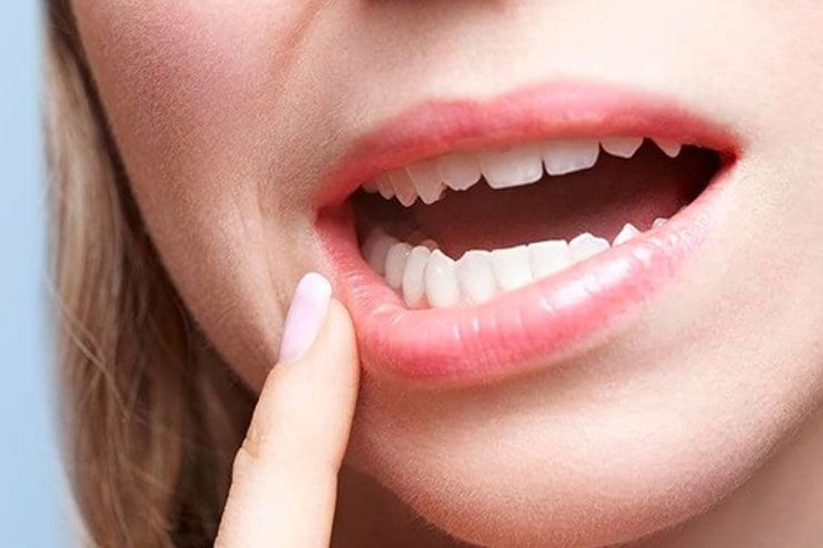 What causes Periodontitis