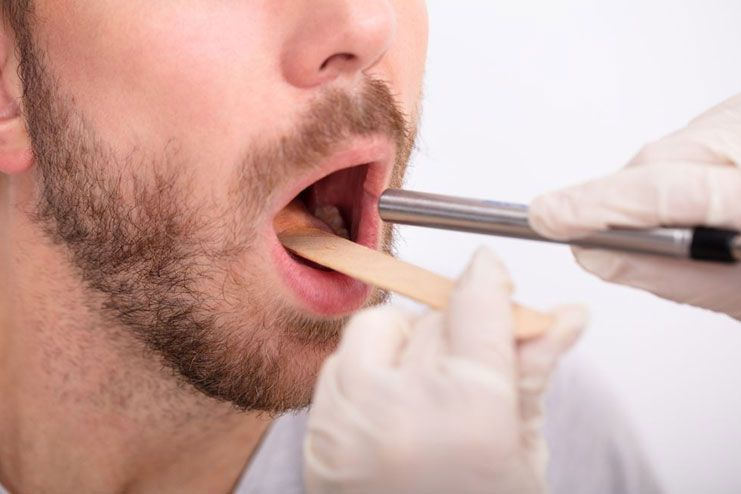 How long does it take for swollen uvula to heal