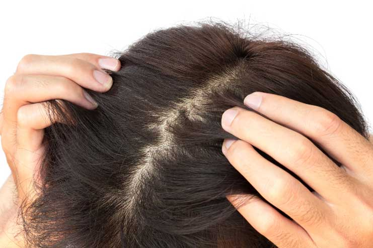 Improve scalp health