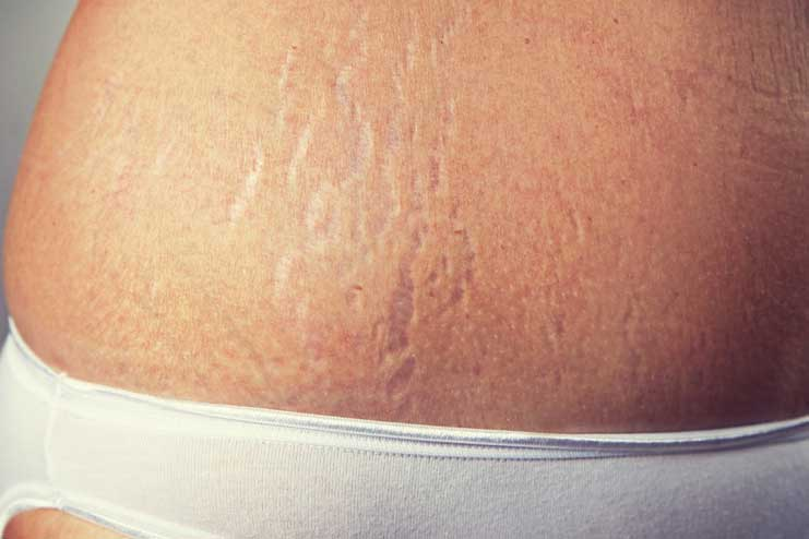 Reduces the appearance of the stretch marks