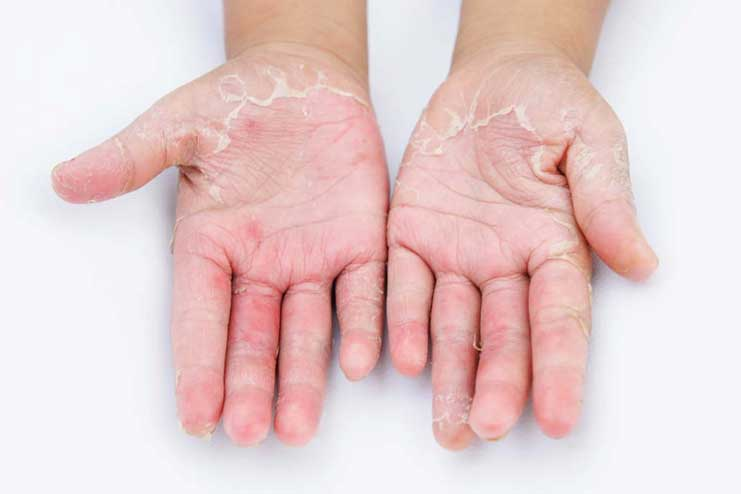 What is a Fungal Skin infection