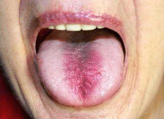 home remedies to treat tongue burn