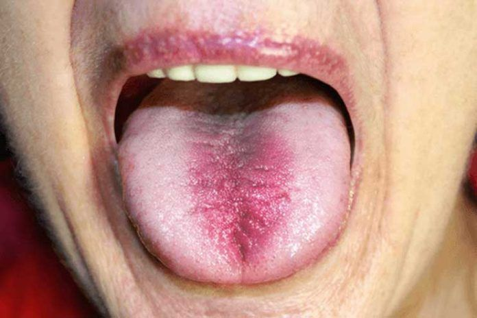 home remedies to treat tongue burn