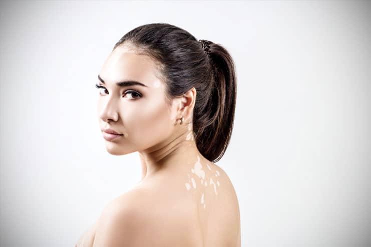 Signs and symptoms of Vitiligo