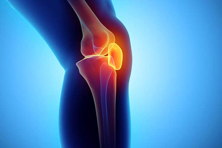 What causes a Bakers cyst