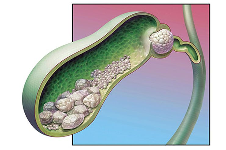 Gall bladder issues