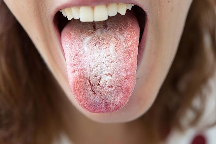 What are the Causes of Tongue Problems