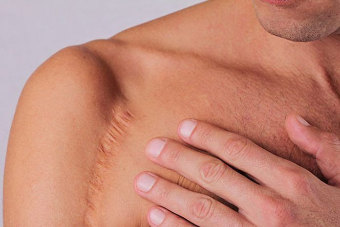 Natural remedies for old scars
