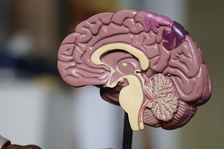 Affected blood flow to the brain
