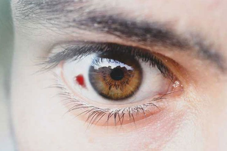 Blood vessel rupture
