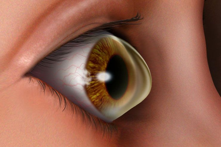 Damage to the cornea