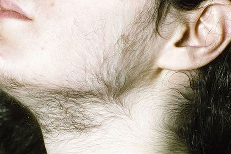 How To Stop Body Hair Growth In Females Naturally