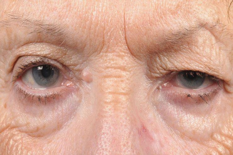 Lax eyelid