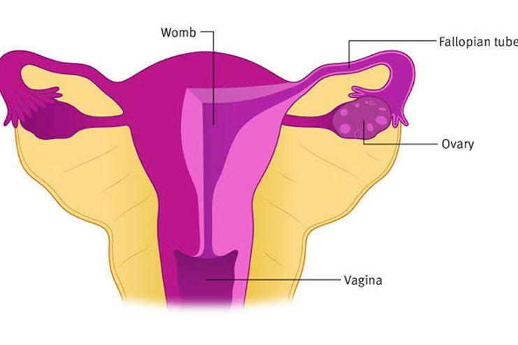 Ovarian Tumor