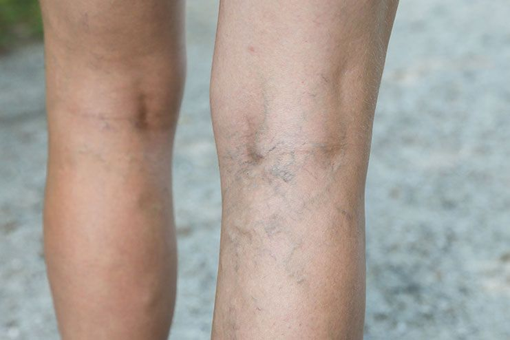 Risks of deep vein thrombosis