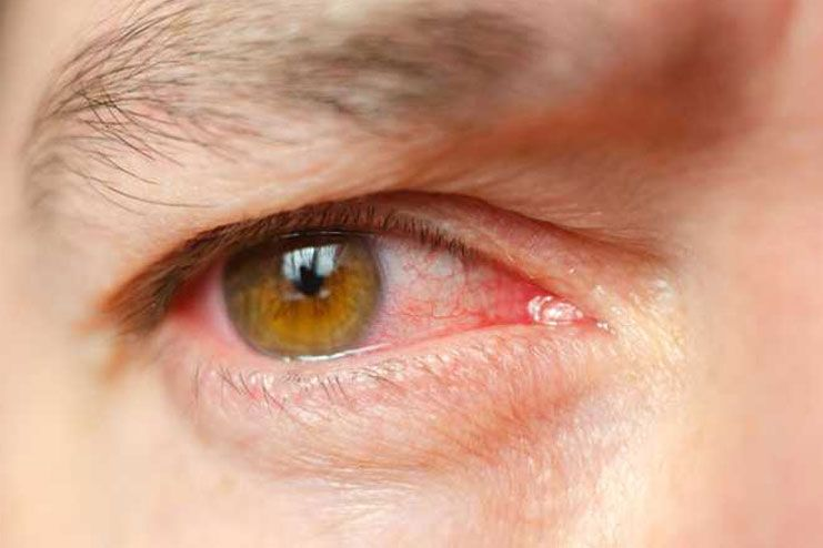 Risks of eye infections