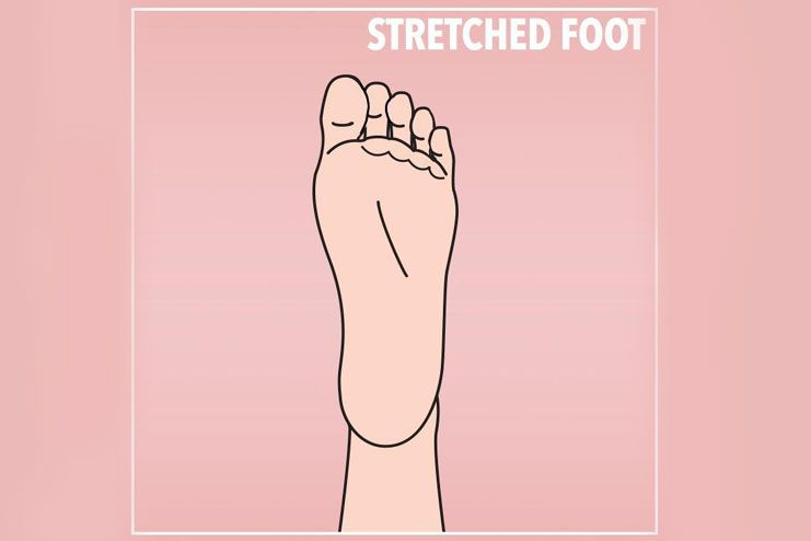 When you have a stretched foot