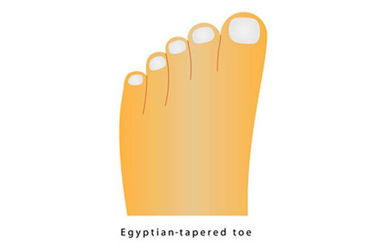 When you have the Egyptian toe