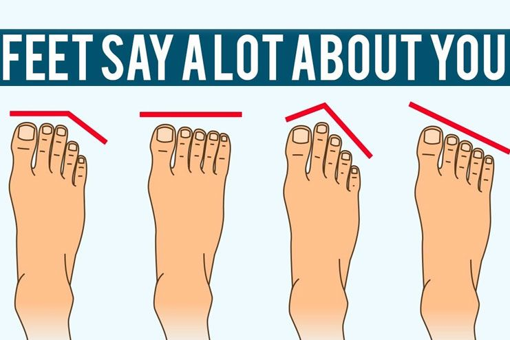 check what kind of foot shape you have