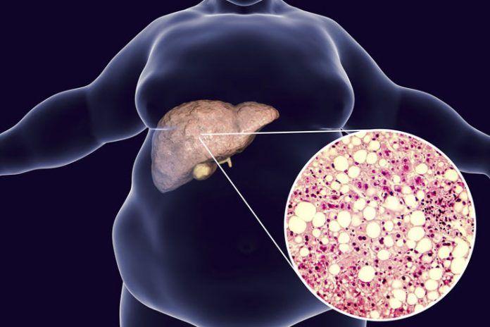 fatty liver disease