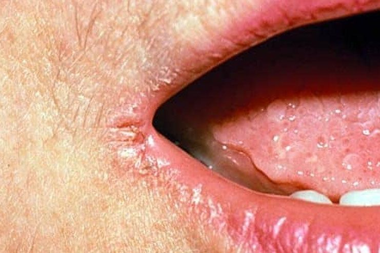 What are angular cheilitis